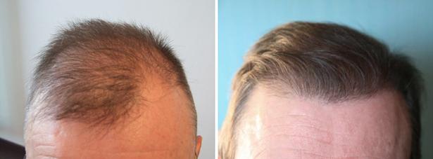 greffe cheveux Budapest Hongrie avant après - SwissMedFlight