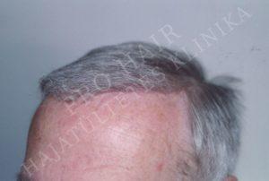 greffe de cheveux FUE et implants capillaires Budapest Hongrie avec SwissMedFlight