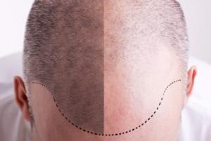 Implants capillaires FUE et greffe de cheveux à Budapest en Hongrie avec SwissMedFlight avant/après