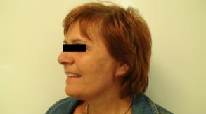 lifting du visage Chirurgie Esthétique Budapest Hongrie SwissMedFlight
