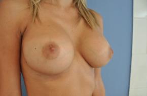 augmentation mammaire par implant mammaire Mentor Sebbin Budapest Hongrie SwissMedFlight Chirurgie esthétique Budapest Hongrie