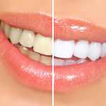 teeth whitening Budapest Hungary SwissMedFlight