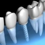 implants dentaires - Dentiste Budapest SwissMedFlight