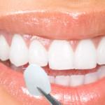 facettes dentaires dentiste budapest hongrie swissmedflight