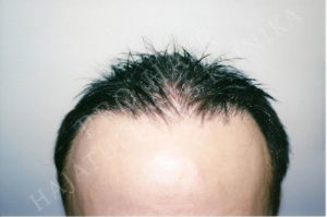 Before After Pictures FUE Hair Transplant in Budapest, Hungary