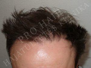 photos avant apr s greffe de cheveux fue en hongrie budapest. Black Bedroom Furniture Sets. Home Design Ideas