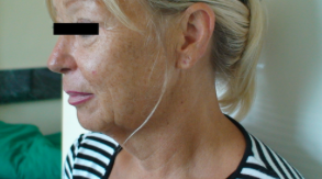 before after picture plastic surgery lifting mini lift Budapest Hungary SwissMedFlight