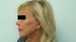 Before After Picture Plastic Surgery Budapest Hungary SwissMedFlight Lifting Mini Lift
