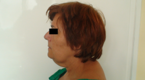 Before After Picture Mini Lift Lifting Plastic Surgery Budapest Hungary SwissMedFlight