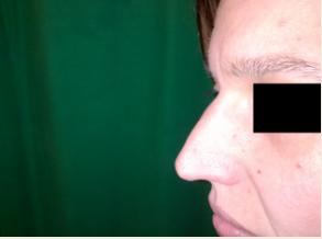 Rhinoplastie Chirurgie du nez Budapest Hongrie SwissMedFlight Photos Avant Après