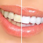 blanchiment dentaire à Budapest SwissMedFlight
