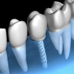 Dental implants abroad - Budapest Hungary - SwissMedFlight