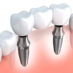 bridge sur implant dentaire - Budapest Hongrie