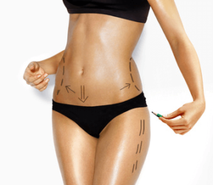 Liposuction of the hips and love handles: price and free quote