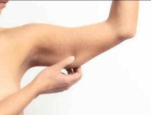 arm liposuction - SwissMedFlight