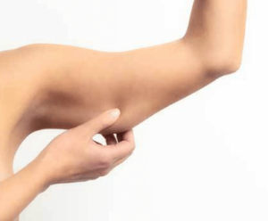 arm liposuction - SwissMedFlight