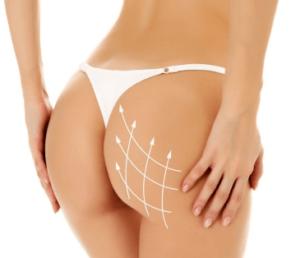 liposuccion des fesses
